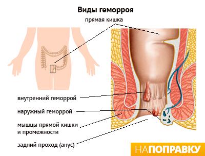 Геморрой | Лечение геморроя