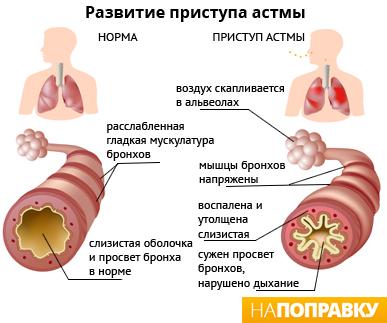 лфк бронхиальной астмы презентация
