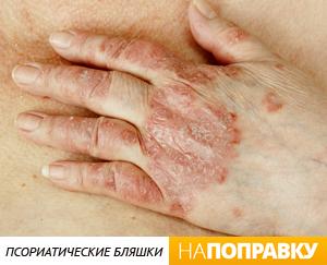 lechenie-psoriaza-pod-mishkoy