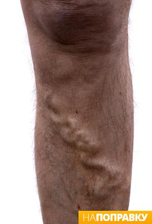 Облитерирующими заболеваниями артерий нижних конечностей