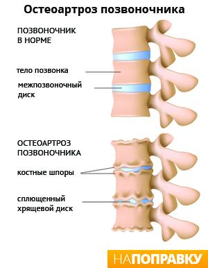 Экстрасистола симптомы и лечение
