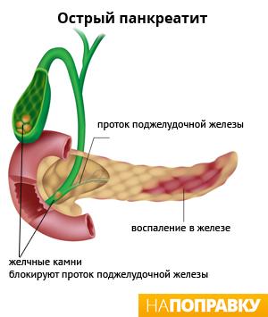 pankreatit-i-seks