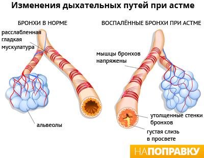 сколько человек болеет бронхиальной астмой