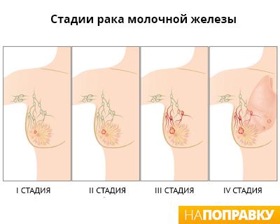 Метод лечения варикоза лазером