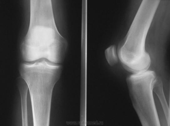 Ренген коленного сустава в приморском р-не спб бандаж иммобилизирующий плечевого сустава