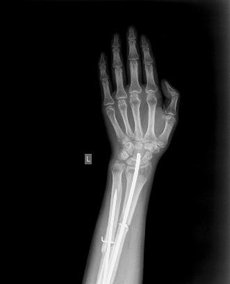 Рентген коленного сустава где сделать в спб перелом плечевого сустава со смещением без операции